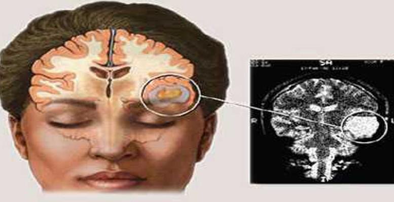 Jenis-jenis Kanker Otak