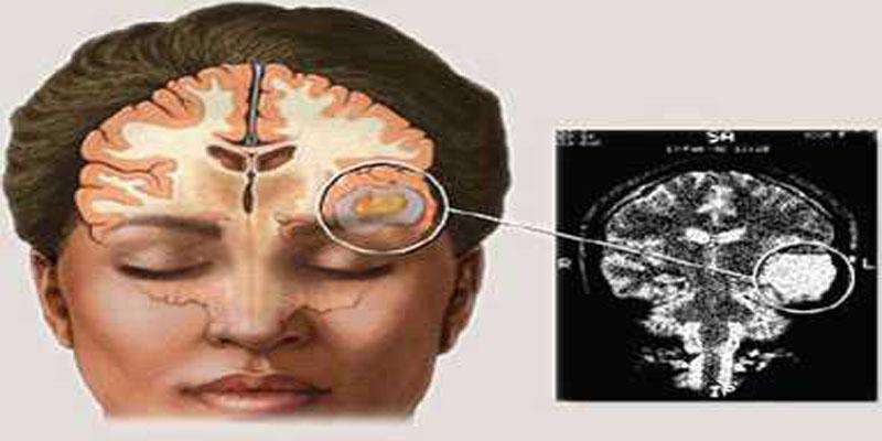 Jenis-jenis Kanker Otak - Artikel Kanker