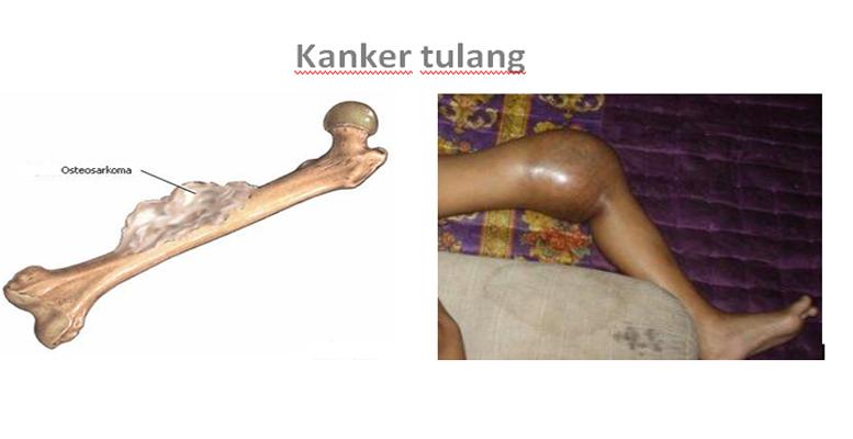 Jenis-jenis dan Ciri-ciri Kanker Tulang