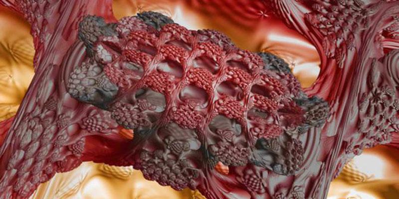 12 Jenis Kanker Ganas Berbahaya - Artikel Kanker