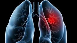 Ancaman Penyakit Kanker paru