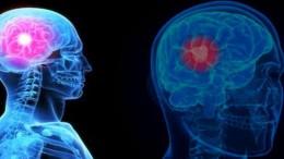 Keganasan Penyakit Kanker Otak