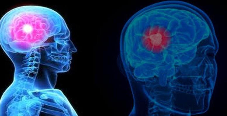 Keganasan Penyakit Kanker Otak - Artikel Kanker